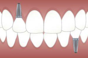 Zobu implantēšana un gudrības zoba raušana