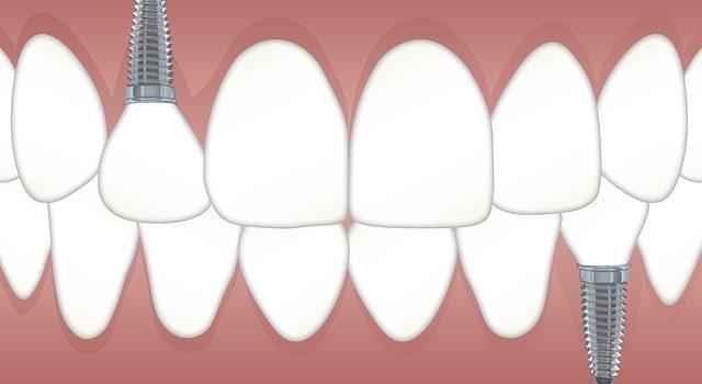 Denta M zobārsts Valmierā